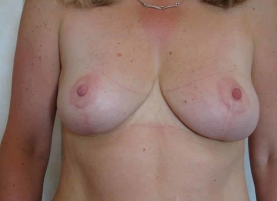 Breast reduction post 1