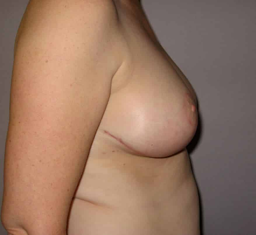 Breast reduction post 3