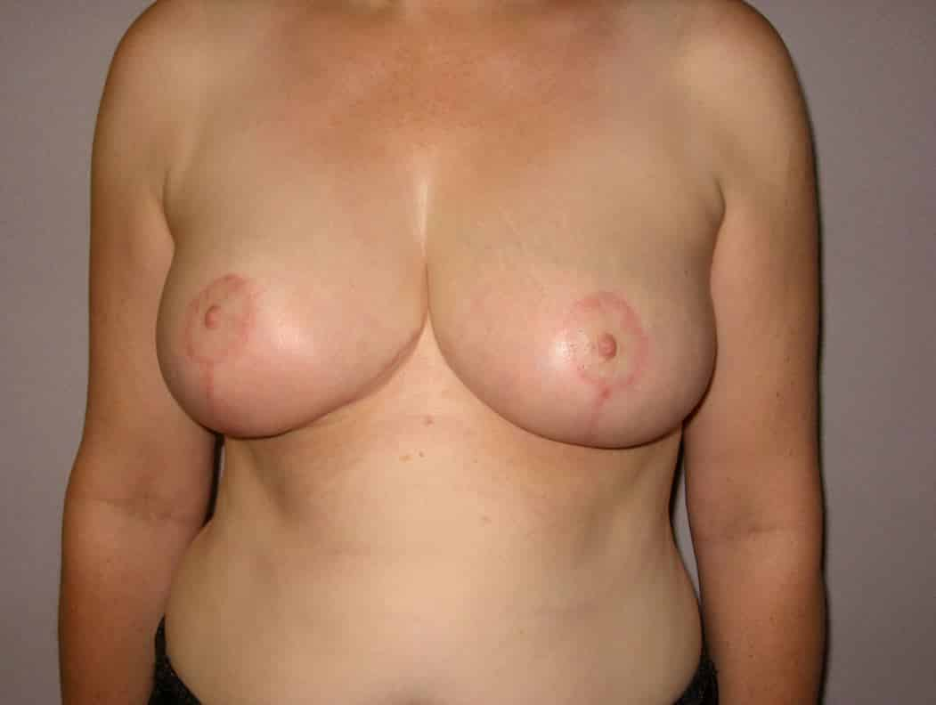 Breast reduction post 4