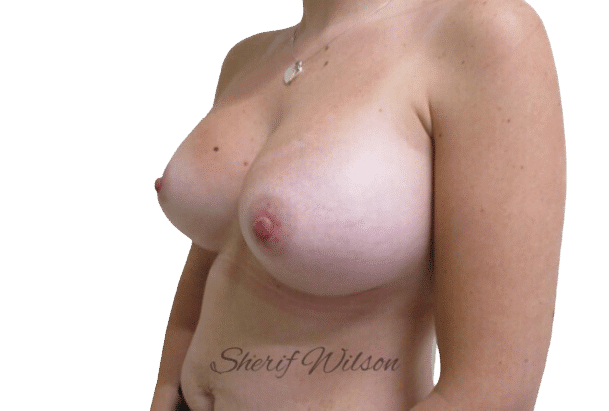 Breast_Aug_Post_10