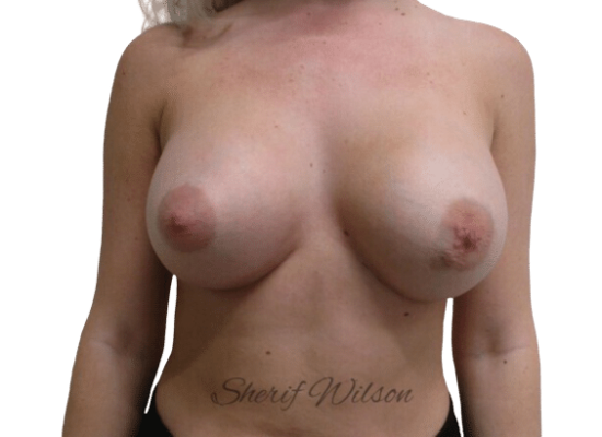 Breast_Aug_Post_11