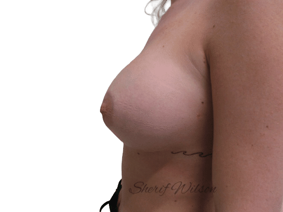 Breast_Aug_Post_12
