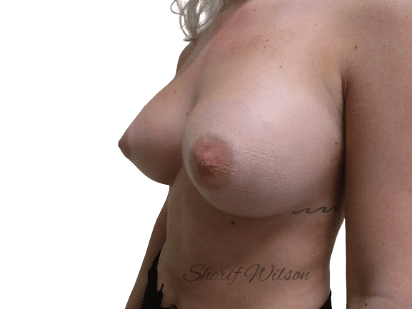 Breast_Aug_Post_13