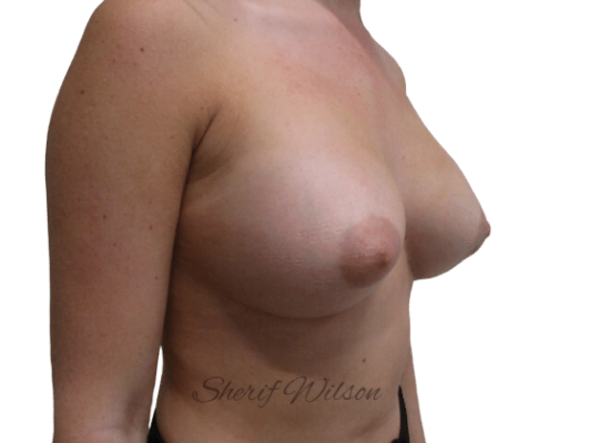 Breast_Aug_Post_14