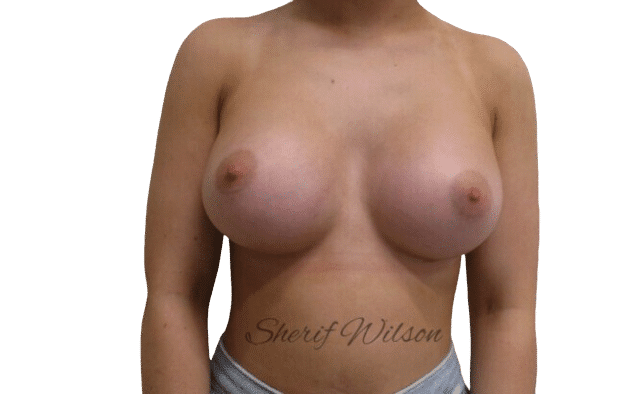 Breast_Aug_Post_15