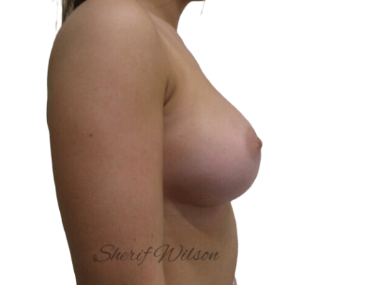 Breast_Aug_Post_16