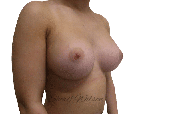 Breast_Aug_Post_17