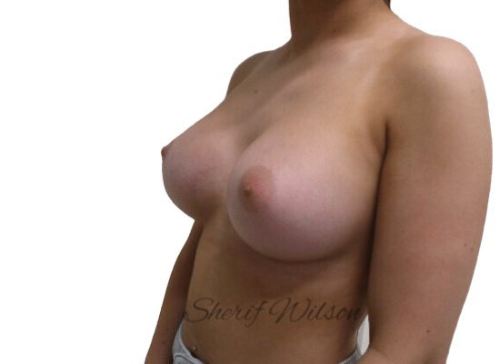 Breast_Aug_Post_18