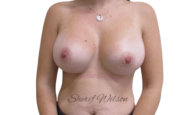 Breast_Aug_Post_20