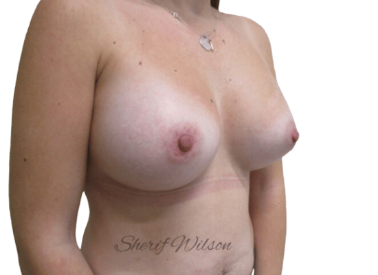 Breast_Aug_Post_21