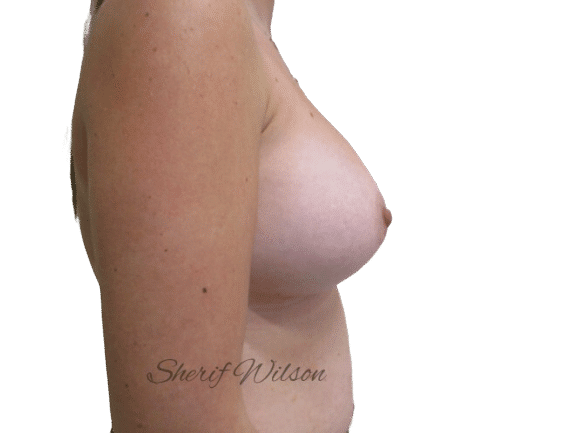 Breast_Aug_Post_8