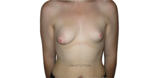 Tuberous breasts can be different shapes and sizes and there are different degrees of severity