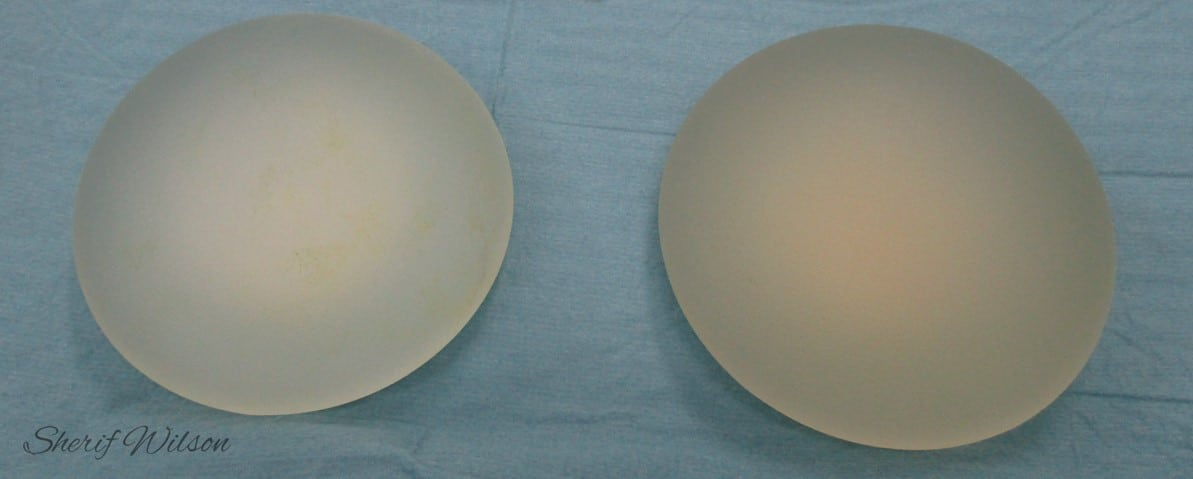 Breast implant removal non-ruptured implants