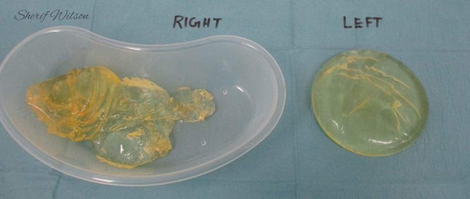 Breast implant removal ruptured implants
