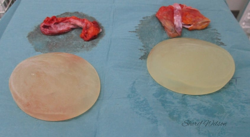 Breast implant removal total capsulectomy